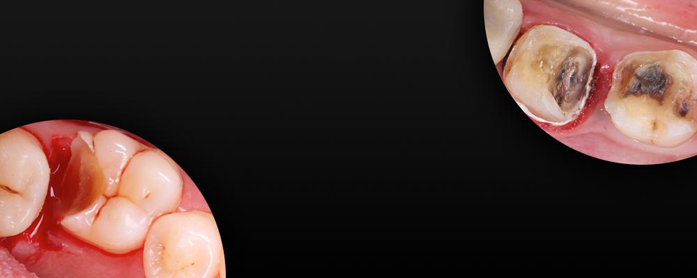MasterClass-Deep-Margins-Website-desktop-1000x300