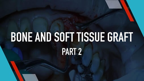 Soft Tissue Grafting Dental Training Videos