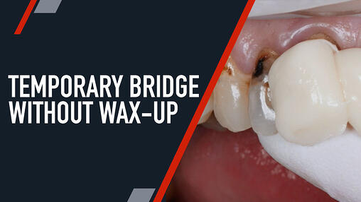 Temporaries Dental Training Videos