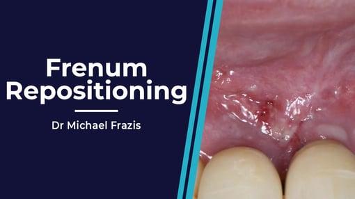 Anterior Dental Training Videos