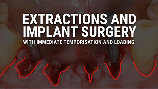 Implant Dental Training Videos