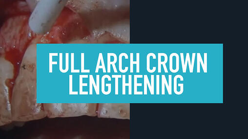 Full Arch Dental Training Videos
