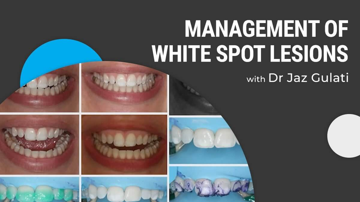 Content-Jaz-Gulati-management-of-white-spot-lesions (1)