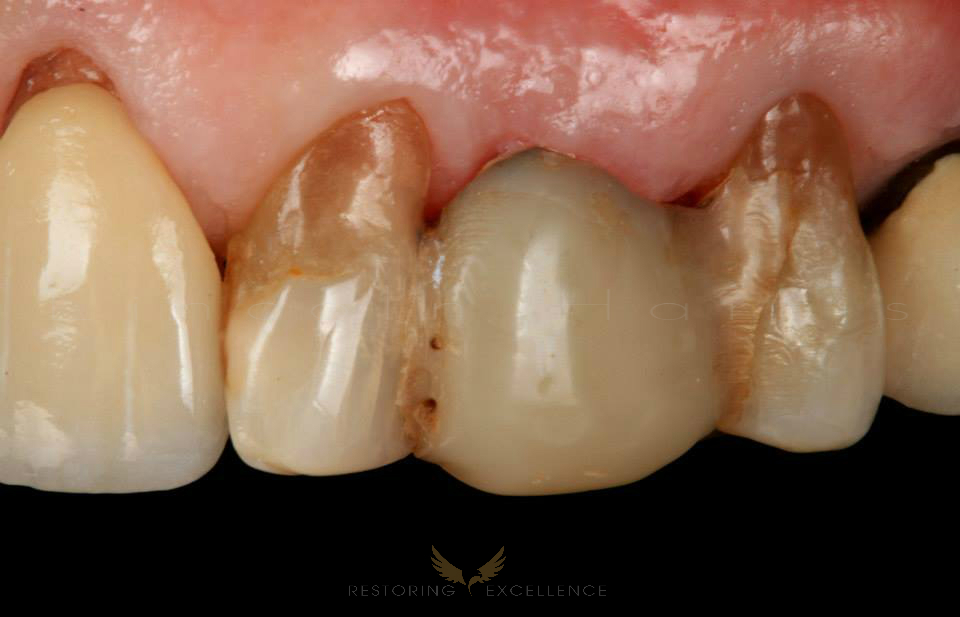 I find most resin FPD fail because of caries interproximally.