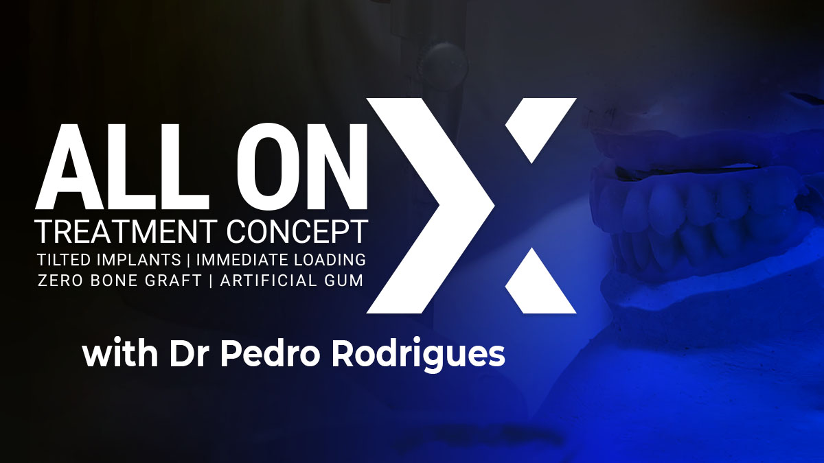 Thumbnail-LEC0321-AOX-Rodrigues-overview-1