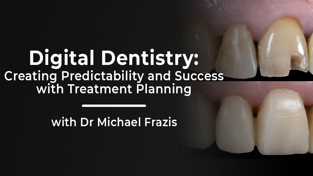 MC010621-Frazis-digital-dentistry-Thumbnail-3-1200x675