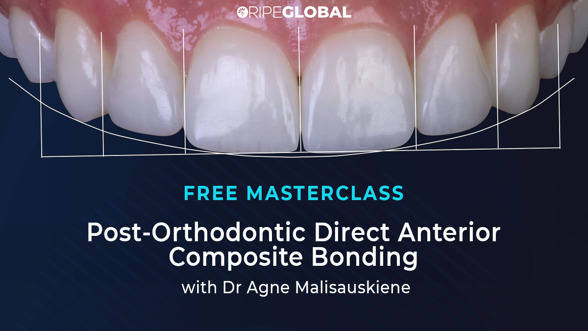 MC160721-Agne-Direct-Anterior-Composites-thumbnail-text+teeth-2-1200x675