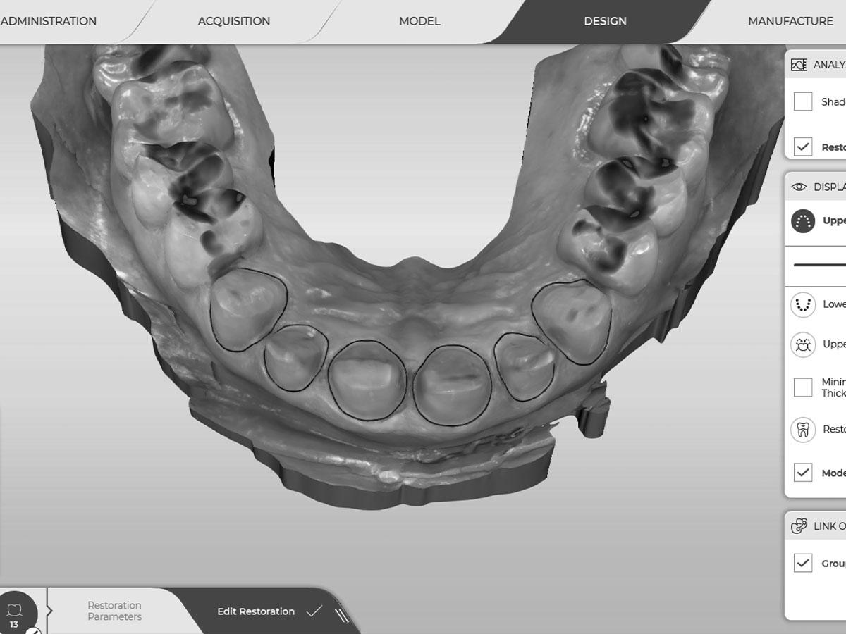 RGG-Digital-Dentistry-images-bw-4x3-5