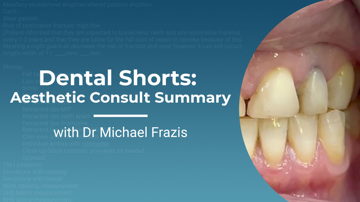 Content-Frazis-Dental-shorts-aesthetic-consult-summary-Thumbnail-1200x675