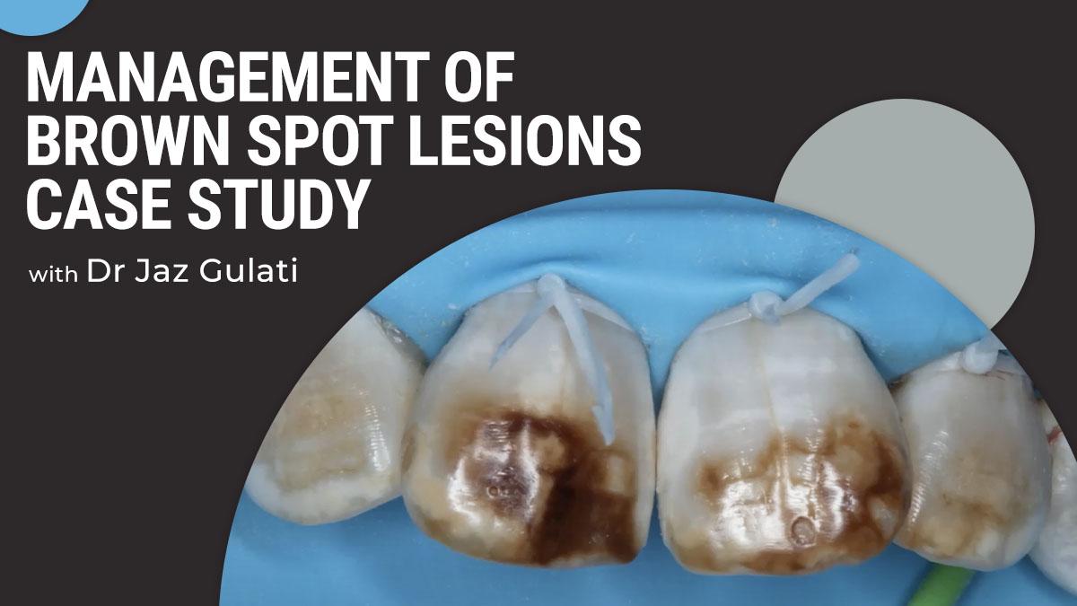Content-Jaz-Gulati-management-of-brown-spot-lesions-case-study-thumbnail-1200x675