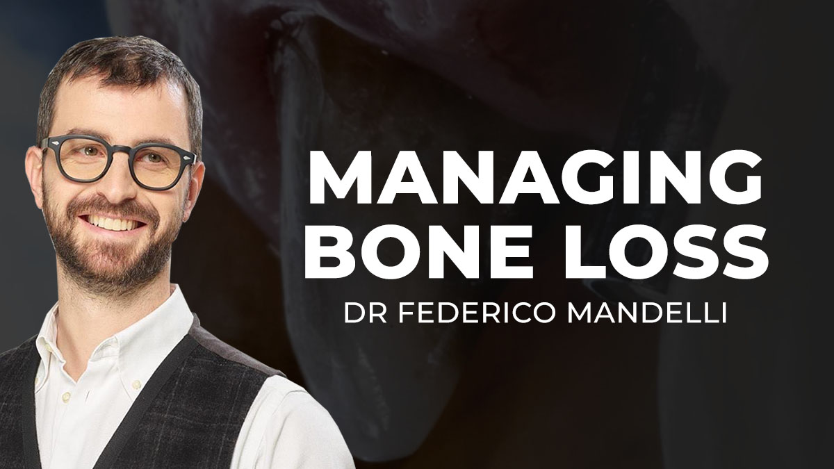 Thumbnail-Federico-mandelli-managing-bone-loss-overview-1200x675