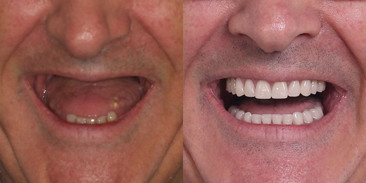 LEC0321-AOX-patient-1-before-after-1200x600-1